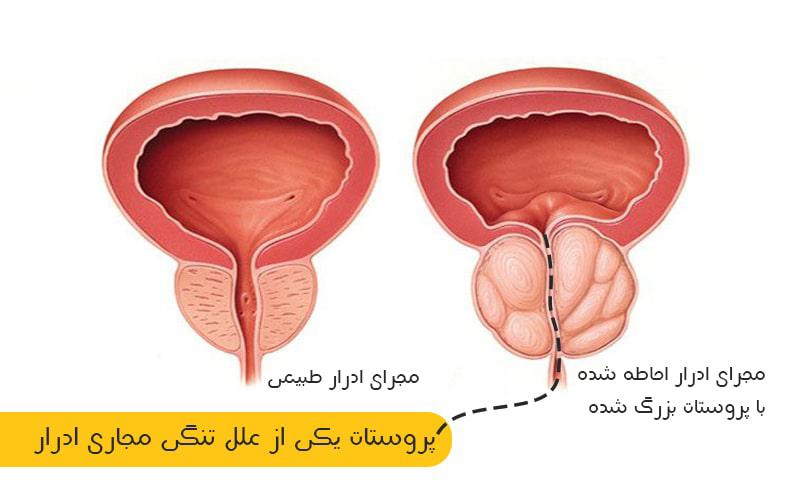 پروستات یکی از علل تنگی مجرای ادرار