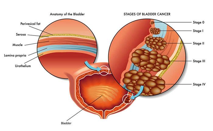 علائم تومور مثانه