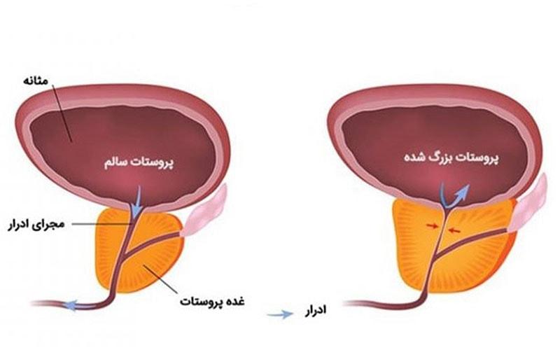 درمان پروستات توسط اورولوژیست